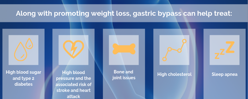 gastric bypass in israel